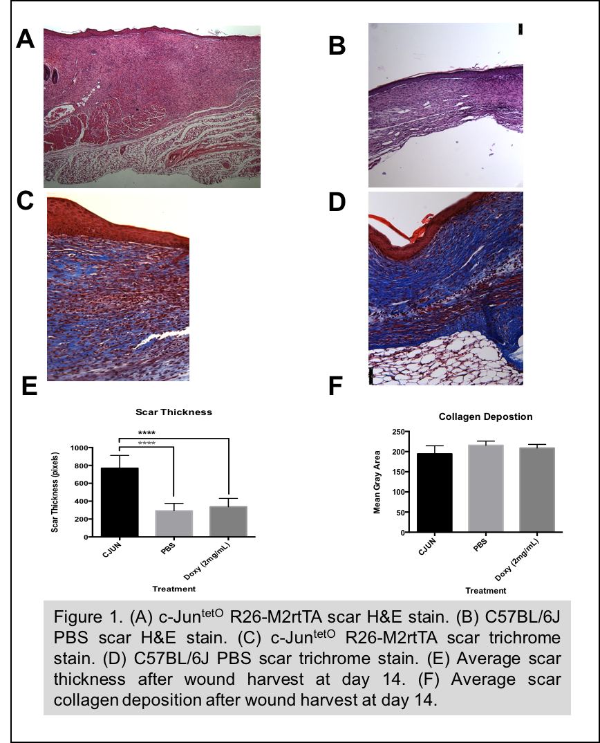3 14 C-Jun Induction Leads to Increased Scar Formation and